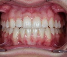 Case that i debonded yesterday...#orthodontist #orthodontics #dentist #dentistry #dentalphotography #estheticdentistry #تقويم_اسنان by dr_khalifa_orthodontics Our General Dentistry Page: http://www.lagunavistadental.com/services/general-dentistry/ Google My Business: https://plus.google.com/LagunaVistaDentalElkGrove/about Our Yelp Page: http://www.yelp.com/biz/fenton-krystle-dds-laguna-vista-dental-elk-grove-3 Our Facebook Page: https://www.facebook.com/LagunaVistaDental/ Laguna Vista Dental…