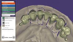 CAD : Bloccaggio anteriore inferiore con attacchi per scheletrato