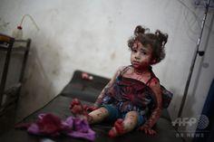 【AFP記者コラム】中東の流血写真と映像に向き合う編集者の苦悩 国際ニュース:AFPBB News