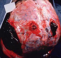 Traumatic brain injury-Subdural hematoma- Epidural hemaatoma. The same patient also had bilateral subdural hematomas, which were partially evacuated through burr holes.