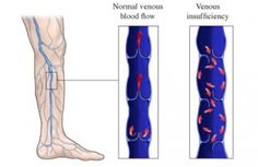 What is Venous Reflux? Explained! #varicose #vein
