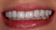 You can now view and rate Dr. Firouzian's work on Rankipedia. Porcelain veneers  :  http://www.rankipedia.com/dentist/dentistprofile/Dr-F--Michael-Firouzian-DDS-FAGD-FICCMO-LVIF-Columbus/43235/id/125706