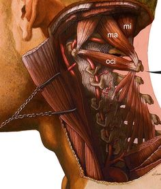 Danny Quirk - detail showing the Suboccipital Triangle- - Rectus Capitus Minor (*mi) -Rectus Capitus Major (*ma) - Obliquus Capitus Inferior (oci) Gross Anatomy, Human Body Anatomy, Yoga Anatomy, Human Anatomy And Physiology, Muscle Anatomy, Craniosacral Therapy, Medical Anatomy, Qi Gong, Massage Techniques