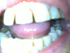 Before treatment photo of upper and lower teeth