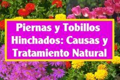 Remedios Naturales para  Piernas y Tobillos  Hinchados. - http://solucionparaelacne.org/blog/remedios-naturales-para-piernas-y-tobillos-hinchados/