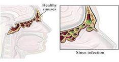 Liberarti della Sinusite in meno di 30 secondi: ecco come - http://www.sostenitori.info/liberarti-della-sinusite-meno-30-secondi/258856