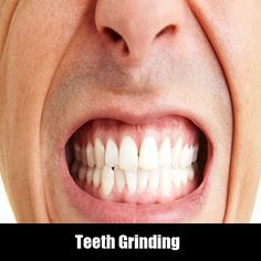 Teeth Grinding   Read about the causes and symptoms  of teeth grinding in Night. And How to stop grinding your teeth.  #teethgringing #dentist #dentalcare