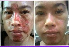 #Extreme #facial #burns 80% #recovery in only 8 days using the #Luminesce #Serum