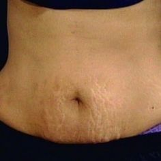Natural Cure For Stretch Marks