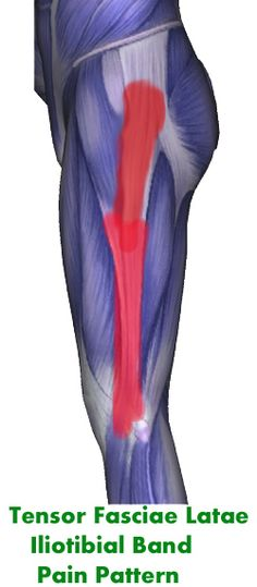 Iliotibial Band (IT) and Tensor Fasciae Latae Trigger Point Pain Pattern and Info