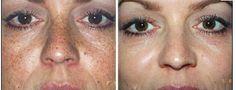 Sun damage treatment, removve unwanted dark spots, age spots, sun spots  IM-FABULOUS.COM