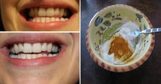 This Turmeric Anti-Inflammatory Paste Will Reverse Gum Disease, Swelling, And Kill Bacteria – PolyTrendy Turmeric Anti Inflammatory, What Is Turmeric, Turmeric Paste, Natural Spice, Receding Gums, Healthy Teeth, Oral Health, Teeth Whitening, Natural Remedies