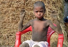 The boy who is turning into stone due to a rare condition