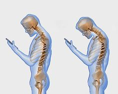 Are you currently reading this hunched over your phone or tablet?   Find out what's happening to your spine.