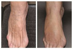 <p>[before and after] Typically, rejuvenation treatmentsevery two to three months will keep the foot'sskin healthy and glowing.</p>