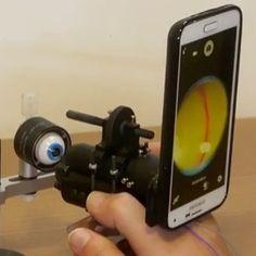 Brasileiros desenvolvem aparelho para examinar retina com smartphone