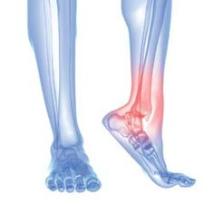 article: How Do You Get Arthritis Foot Pain Relief