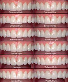 #Veeners Lake Worth Florida Dentist, health, Dr. Suarez