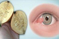 Dans cet article, nous allons vous présenter une recette pour obtenir une meilleure vision ! Ce remède vous permettre non seulement d'améliorerez votre vision, mais également de rajeunir la peau autour de vos yeux. Il contient des ingrédients qui sont complètement naturels et qui ont été utilisés depuis les temps anciens pour améliorer la vue …