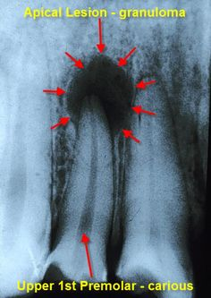 periapical granuloma