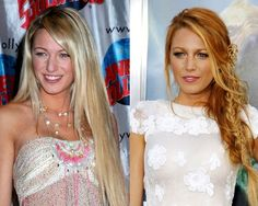 You won't believe which of your favorite celebs have had a nip and tuck! #5 is extreme!!