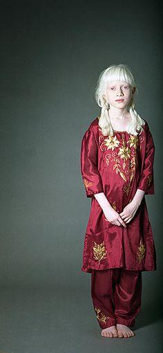 albino | ... > carey evans > Photos > Single Photos > sasha-east indian albino