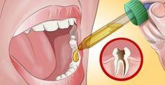 Η Θαυματουργή Συνταγή για να σταματήσετε τον πονόδοντο! Ακόμη και ο Οδοντίατρός σας θα μείνει άφωνος!