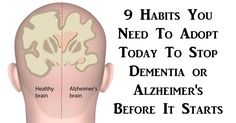 9 Habits You Need To Adopt Today To Stop Dementia or Alzheimer's Before It Starts