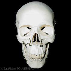 La chirurgie orthognathique