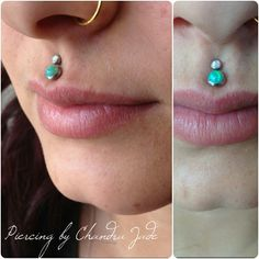 Double philtrum piercing I did adorned with 3mm white opal and 4mm green opal #piercingbychandrajade #piercings #lippiercings #doublephiltrum #philtrum #medusa #medusapiercing #dfw #dallas #texas #girlswithpiercings #opals #opaljewelry #whiteopal #greenopal