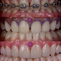 Case from Griya Ratri Putri.rr - Smile Make Over. Local Jobs Hiring, Hiring Now, Dental Assistant Jobs, Dental Hygiene, Restorative Dentistry, Oral Surgery, Finding Yourself, Smile, Cosmetic Dentistry