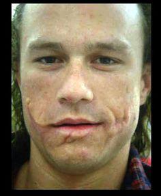 Heath Ledger test photo with Joker prosthetics but no makeup. - Imgur