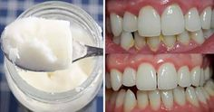 Halitosis (bad breath) can be solved with good oral hygiene Coconut Oil For Teeth, Coconut Oil Pulling, Pasta Dental Casera, Homemade Colon Cleanse, Bad Breath Remedy, Homemade Toothpaste, Coconut Benefits, Best Teeth Whitening, Healthy Teeth