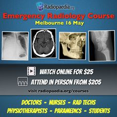 Emergency Radiology Course. Six hours of case based learning with Dr Andrew Dixon & Dr Frank Gaillard. Registrations now open. Visit www.radiopaedia.org/courses