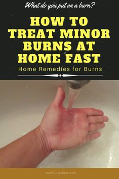15 Effective Home Remedies To Treat Minor Burns At Home Fast image ideas from Health Remedies Tips Burn Skin Home Remedies, Home Remedies For Burns, Home Remedies Beauty, Cold Home Remedies, Natural Remedies, What Helps Burns, How To Heal Burns, Good Burns, First Aid For Burns