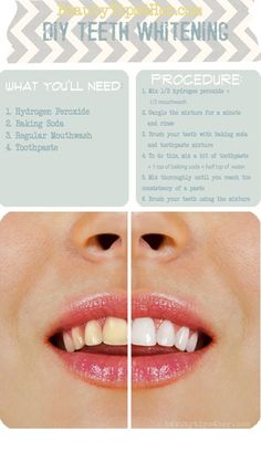 Inexpensive Way to Whiten your Teeth at Home | Beauty and Ma | Postris