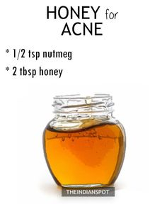 HONEY ACNE REMEDY  Nutmeg has incredible astringent, antibacterial, and antiinflammatory properties, making it an awesome choice for people with acne. Mix 1/2 tsp of nutmeg with 2 tbsp ofhoney and use it as a face mask or just dab a small amount of honey as a spot treatment and lave it on overnight. The …