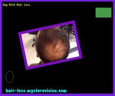 Dog With Hair Loss 143557 - Hair Loss Cure!