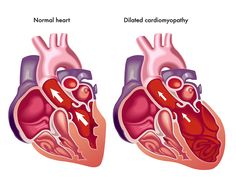 What is Congestive #heartfailure? CHF begins in the #heart which is contained a right chamber and ventricle and a left chamber and ventricle.