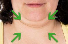 Para reducir la papada: Una cucharada de aceite de ricino y una cucharada de aceite de oliva. Mezclar y con movimientos firmes y ascendentes ve haciéndote un masaje desde el área del cuello hasta la línea de la mandíbula. Hazlo durante al menos 15 minutos, para después empapar una toalla pequeña con agua caliente y, tras escorrerla, dejarla 5 minutos sobre tu cuello. El vapor te ayudará a absorber y a relajar aún más la piel. Haz esto por las noches.