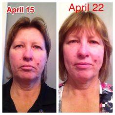 7 DAYS AFTER USING LUMINESCE April 22, Skin Care, Day, Skincare Routine, Skins Uk, Skincare, Asian Skincare, Skin Treatments