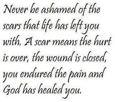 Yes!  I'm workin on this.  I have scars and God is working on the process of my healing.