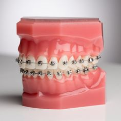 Dr Kalyani is the best Orthodontist and Braces specialist in Ahmedabad. Get Best Dental Treatment from an expert Orthodontist Ahmedabad at Vyom Dental Care Ahmedabad. Black Braces Bands, Cute Braces Colors, Braces Tips, Dental Aesthetics, Brace Face, Teeth Braces, Teeth Care, Braces, Orthodontics Marketing