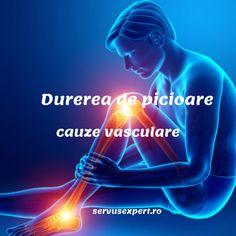cultura fizică medicală varicoză)