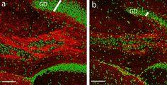 Wie neue Gehirnzellen wachsen - Wissenschaft - Biologen haben es geschafft, in erwachsenen Gehirnen neue Zellen wachsen zu lassen. Sie entdeckten einen Mechanismus, der die Bildung neuer Nervenzellen reguliert.