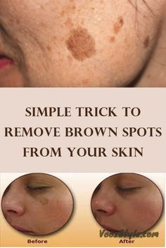 As we age, brown spots can appear on the skin. These are called age spots or liver spots. They appear like flat brownish-colored skin discolorations, which can appear on the face and other locations of the body. Age Spots On Face, Brown Spots On Face, Skin Spots, Dark Spots, Face Age, Facial Brown Spots, Bleaching Your Skin, Too Faced, Tips Belleza