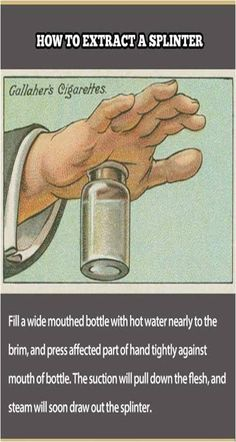 How To Extract a Splinter : Lifehacks from 100 Years Ago. Not sure if it works but I might as well pin it :)