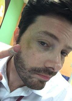 Danilo Gentili se machuca em cena de luta na filmagem de seu primeiro longa #Ator, #Chaves, #Daniel, #Filme, #Humorista, #Livro, #M, #Seriado http://popzone.tv/2016/10/danilo-gentili-se-machuca-em-cena-de-luta-na-filmagem-de-seu-primeiro-longa.html