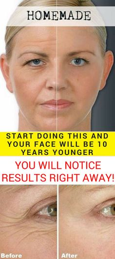 This old Japanese homemade facial mask recipe will smooth your wrinkles and rejuvenate your skin. It will hydrate your skin and you will look 10 years younger overnight. YOU WILL NOTICE RESULTS RIGHT AWAY. #homemadefacialmask #diyfacemask #skincare