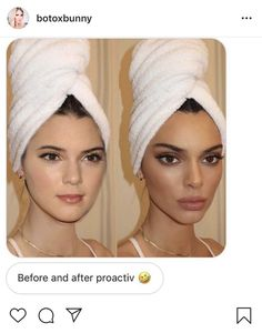 Darling, this is chamomile tea. Facial Fillers, Lip Fillers, Kendall Jenner Plastic Surgery, Instagram Vs Real Life, Plastic Surgery Photos, Celebrity Plastic Surgery, Eyebrow Lift, Celebs Without Makeup, Eye Makeup